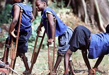 What you need to know about Polio