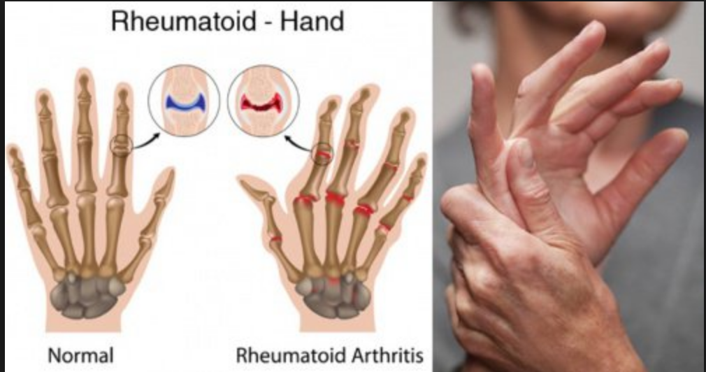 the cause effects and treatment of rheumatoid arthritis Causes include injury (leading to osteoarthritis), metabolic abnormalities (such as gout and pseudogout), hereditary factors, the direct and indirect effect of infections (bacterial and viral), and a misdirected immune system with autoimmunity (such as in rheumatoid arthritis and systemic lupus erythematosus.