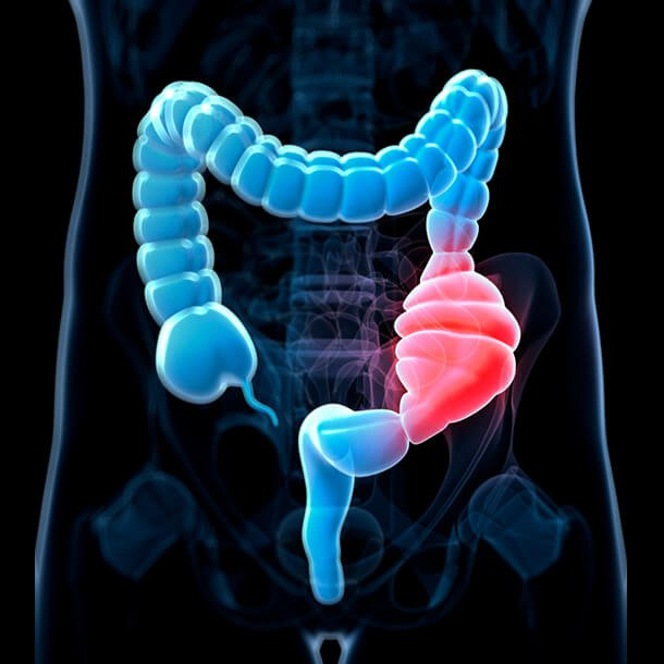 All You Need To Know About Colon Cancer In Kenya Causes Symptoms